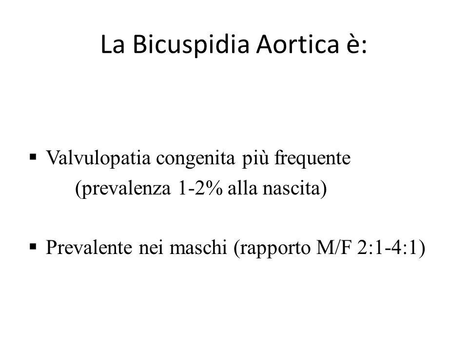 La Bicuspidia Aortica è:  Valvulopatia congenita più frequente (prevalenza 1-2% alla nascita)  Prevalente nei maschi (rapporto M/F 2:1-4:1)