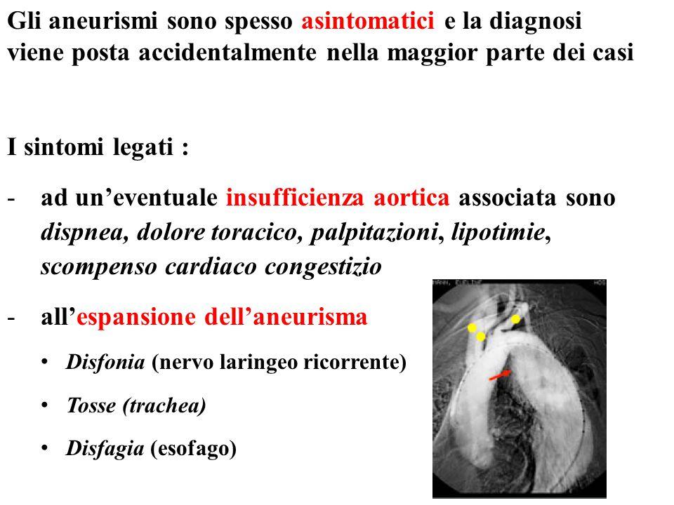 Gli aneurismi sono spesso asintomatici e la diagnosi viene posta accidentalmente nella maggior parte dei casi I sintomi legati : -ad un'eventuale insu