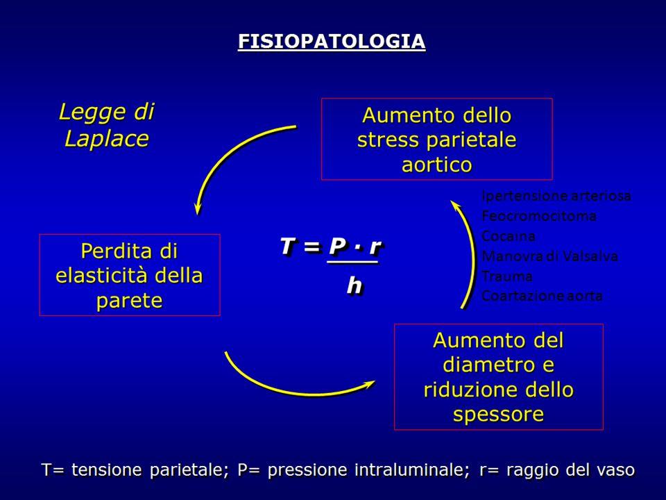 Ipertensione arteriosa Feocromocitoma Cocaina Manovra di Valsalva Trauma Coartazione aorta