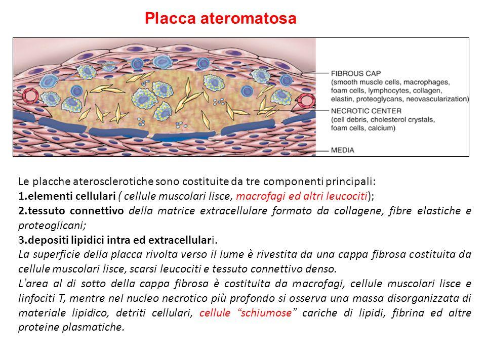 Arteriosclerosi iperplastica: causata da ipertensione severa, e caratterizzata da un ispessimento concentrico e laminare delle pareti delle arteriole,
