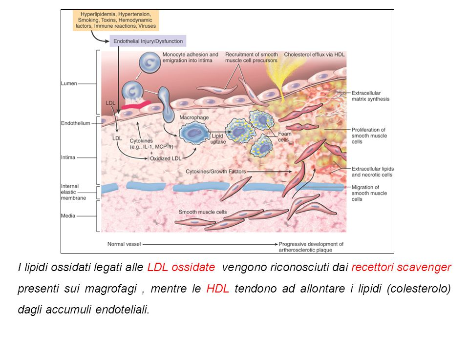 Reclutamento cellule muscolari liscie Aumento della ECM, accumulo di lipidi. Endocitosi lipidica da parte dei macrofagi e cellule muscolari liscie Pro