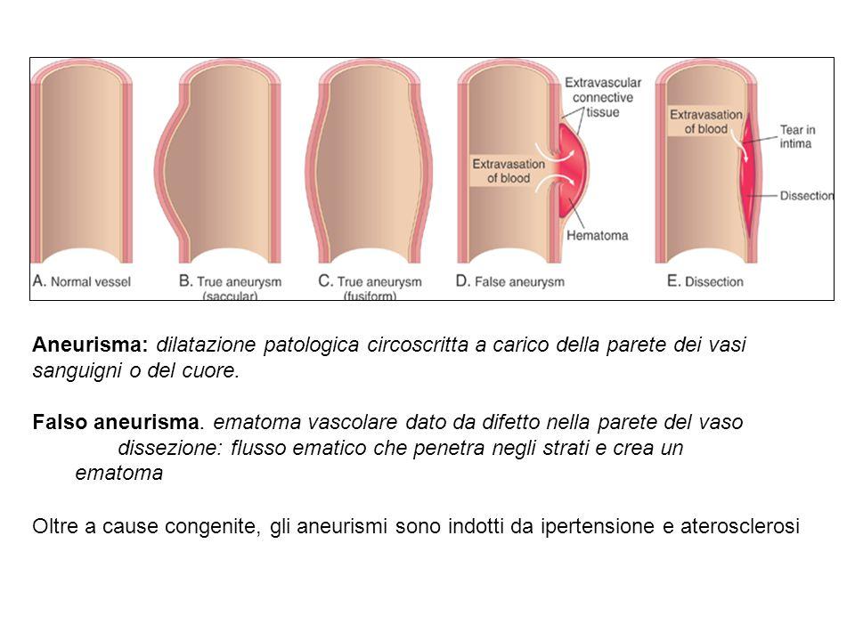 Complicazioni cliniche dell'aterosclerosi
