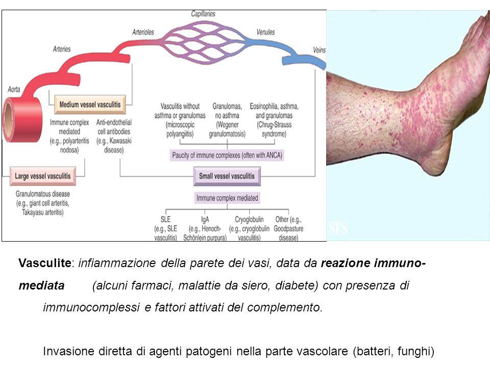 Aneurisma: dilatazione patologica circoscritta a carico della parete dei vasi sanguigni o del cuore. Falso aneurisma. ematoma vascolare dato da difett