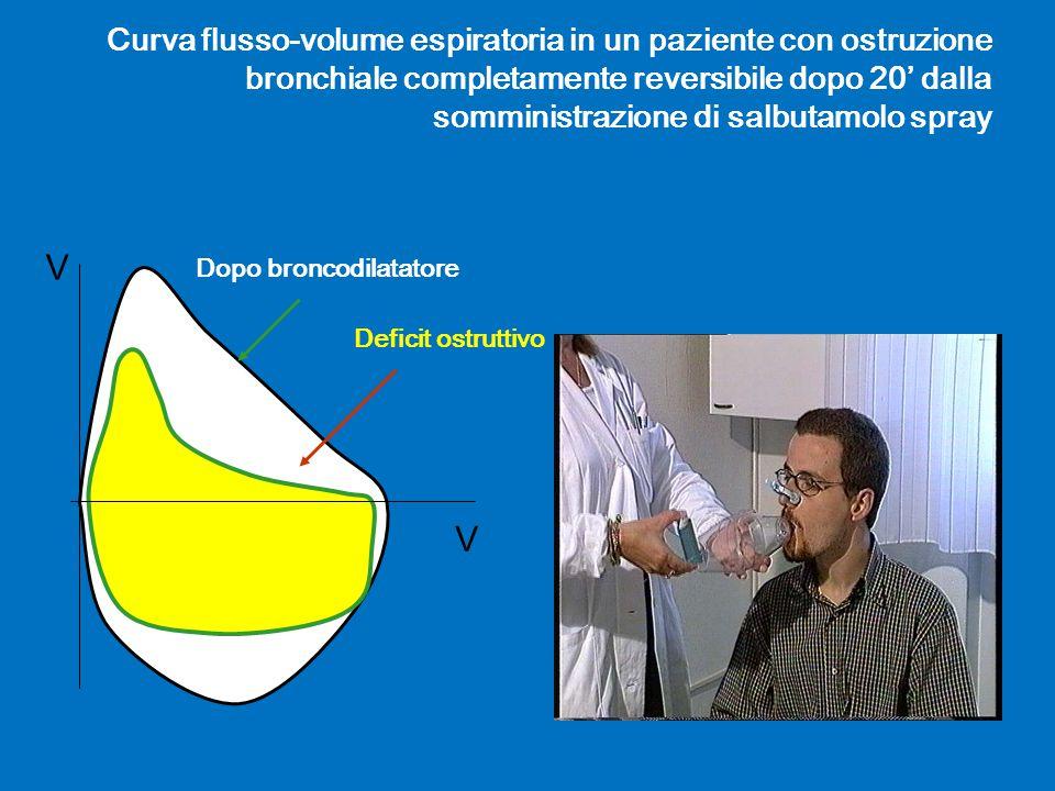 Curva flusso-volume espiratoria in un paziente con ostruzione bronchiale completamente reversibile dopo 20' dalla somministrazione di salbutamolo spra