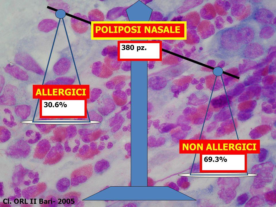 380 pz. POLIPOSI NASALE ALLERGICI 30.6% NON ALLERGICI 69.3% Cl. ORL II Bari- 2005