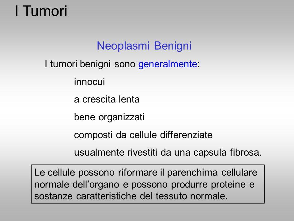 I Tumori Neoplasmi Benigni I tumori benigni sono generalmente: innocui a crescita lenta bene organizzati composti da cellule differenziate usualmente