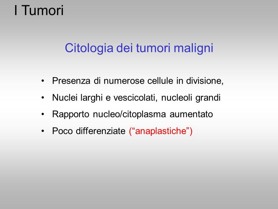 I Tumori Presenza di numerose cellule in divisione, Nuclei larghi e vescicolati, nucleoli grandi Rapporto nucleo/citoplasma aumentato Poco differenzia