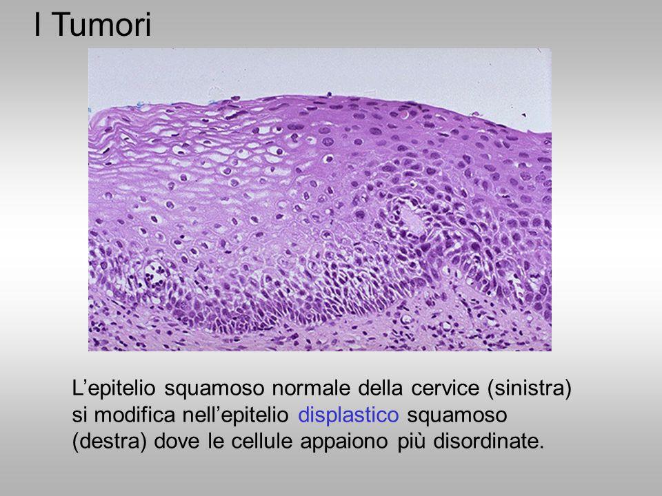 L'epitelio squamoso normale della cervice (sinistra) si modifica nell'epitelio displastico squamoso (destra) dove le cellule appaiono più disordinate.