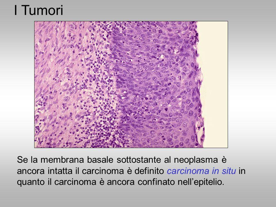 Se la membrana basale sottostante al neoplasma è ancora intatta il carcinoma è definito carcinoma in situ in quanto il carcinoma è ancora confinato ne