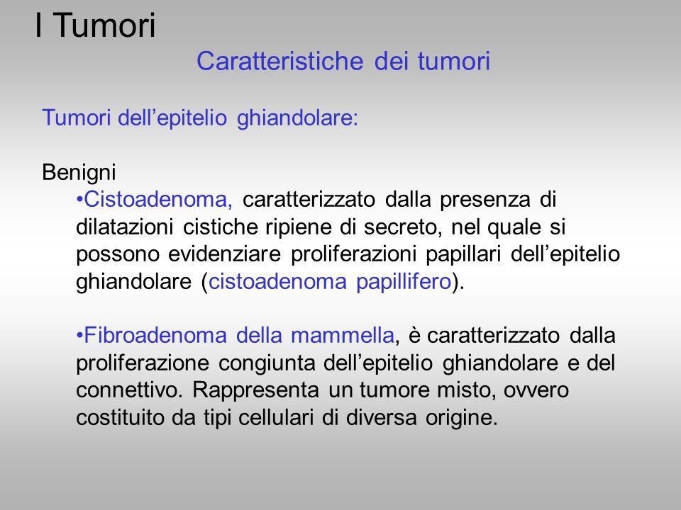 I Tumori Tumori dell'epitelio ghiandolare: Benigni Cistoadenoma, caratterizzato dalla presenza di dilatazioni cistiche ripiene di secreto, nel quale s