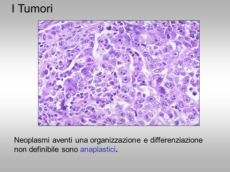 Neoplasmi aventi una organizzazione e differenziazione non definibile sono anaplastici. I Tumori