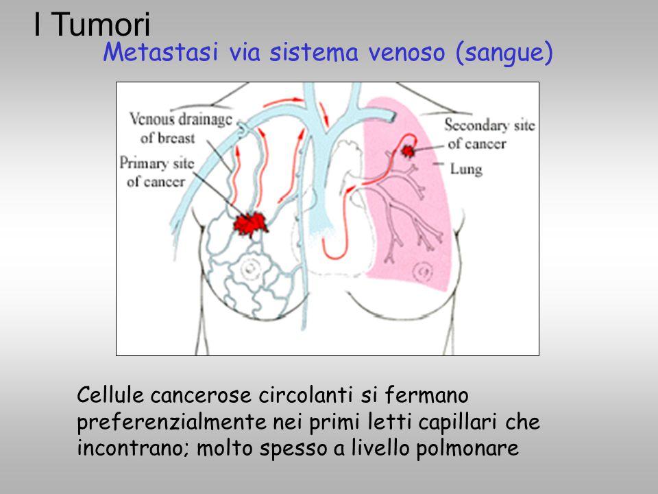 Metastasi via sistema venoso (sangue) Cellule cancerose circolanti si fermano preferenzialmente nei primi letti capillari che incontrano; molto spesso