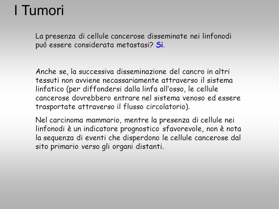 La presenza di cellule cancerose disseminate nei linfonodi può essere considerata metastasi? Si. Anche se, la successiva disseminazione del cancro in