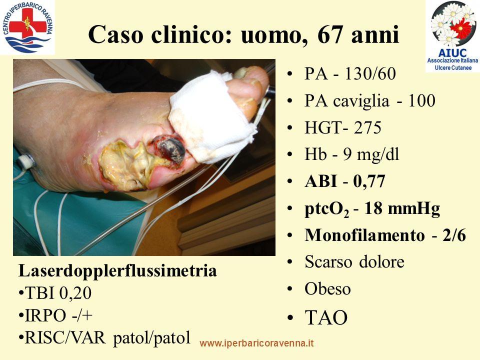 www.iperbaricoravenna.it Caso clinico: uomo, 67 anni PA - 130/60 PA caviglia - 100 HGT- 275 Hb - 9 mg/dl ABI - 0,77 ptcO 2 - 18 mmHg Monofilamento - 2/6 Scarso dolore Obeso TAO Laserdopplerflussimetria TBI 0,20 IRPO -/+ RISC/VAR patol/patol