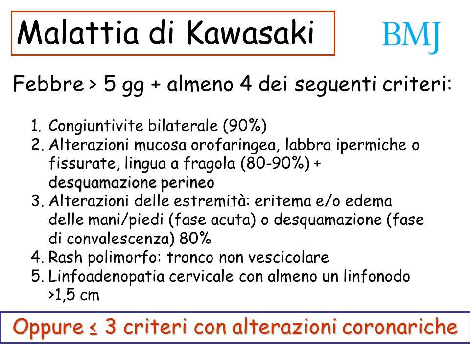 Febbre > 5 gg + almeno 4 dei seguenti criteri: 1.Congiuntivite bilaterale (90%) desquamazione perineo 2.Alterazioni mucosa orofaringea, labbra ipermic