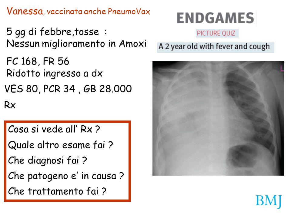 Vanessa, vaccinata anche PneumoVax 5 gg di febbre,tosse : Nessun miglioramento in Amoxi FC 168, FR 56 Ridotto ingresso a dx VES 80, PCR 34, GB 28.000