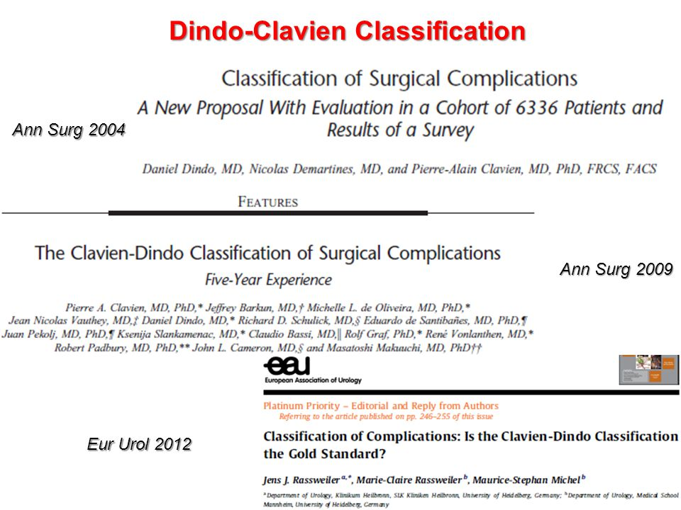 Dindo-Clavien Classification in letteratura Single-stage laparoscopic sleeve gastrectomy: safety and efficacy in the super-obese. Lemanu DPLemanu DP et al.