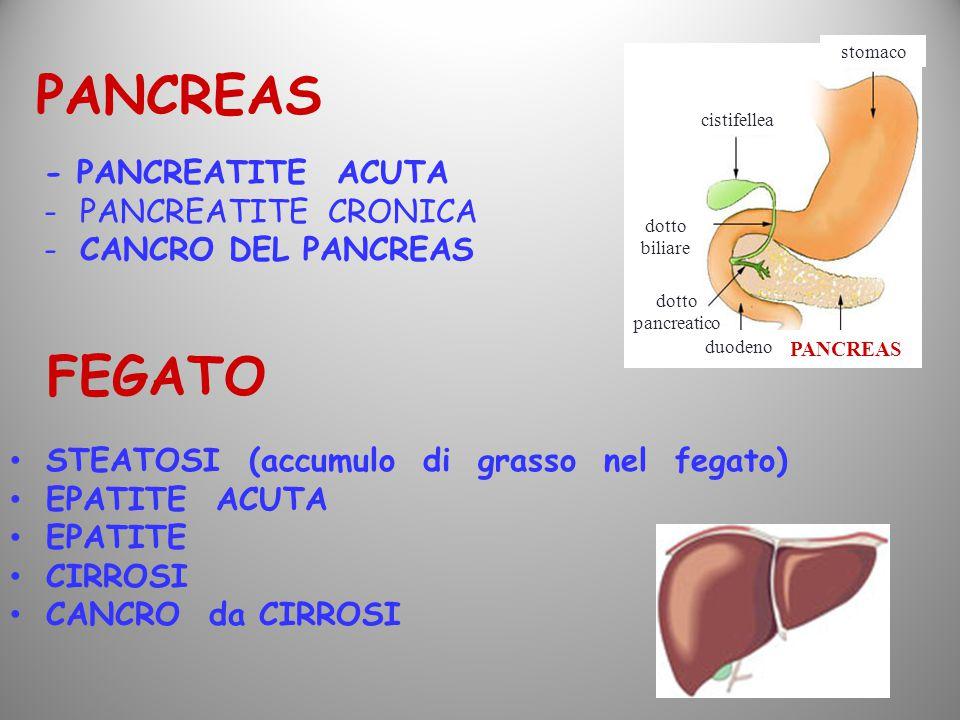 - PANCREATITE ACUTA -PANCREATITE CRONICA -CANCRO DEL PANCREAS PANCREAS FEGATO STEATOSI (accumulo di grasso nel fegato) EPATITE ACUTA EPATITE CIRROSI C