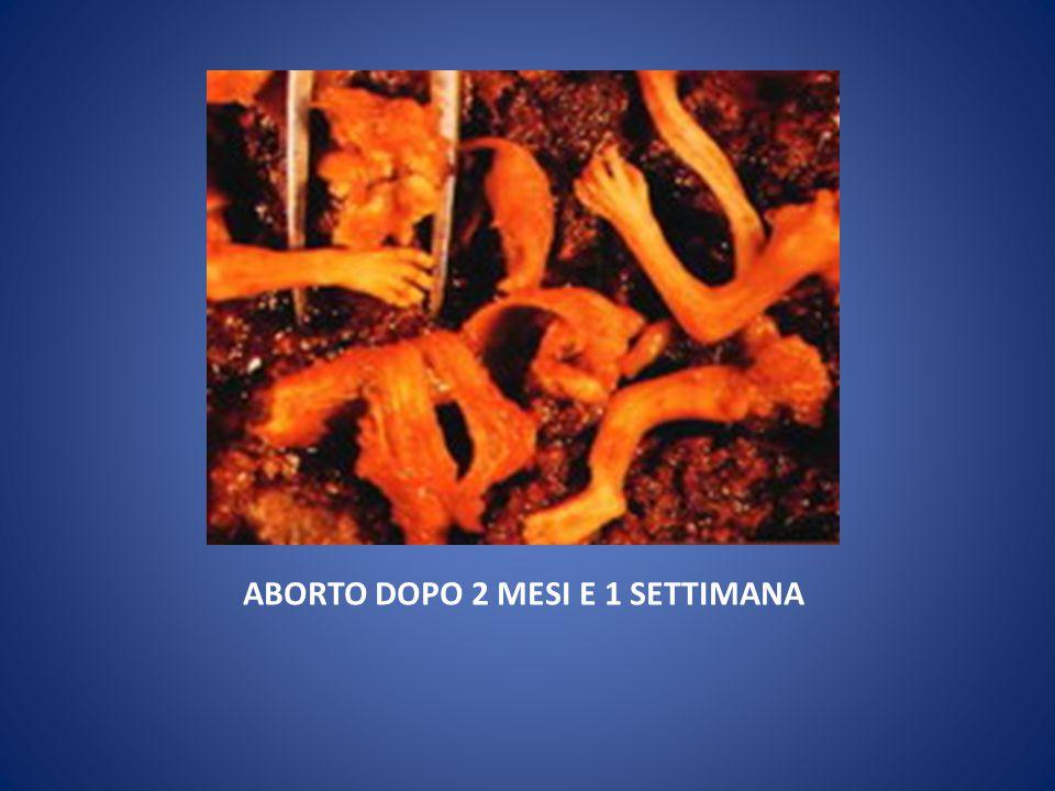 ABORTO DOPO 4-6 MESI