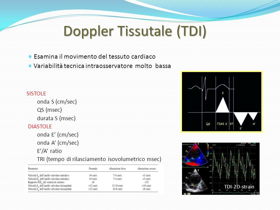 Doppler Tissutale (TDI) Doppler Tissutale (TDI) SISTOLE onda S (cm/sec) QS (msec) durata S (msec) DIASTOLE onda E' (cm/sec) onda A' (cm/sec) E'/A' rat