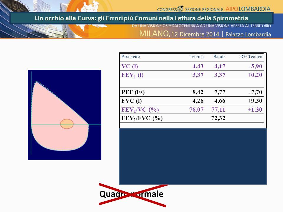 Un occhio alla Curva: gli Errori più Comuni nella Lettura della Spirometria ParametroTeoricoBasale D% Teorico VC (l)4,434,17-5,90 FEV 1 (l)3,37 +0,20