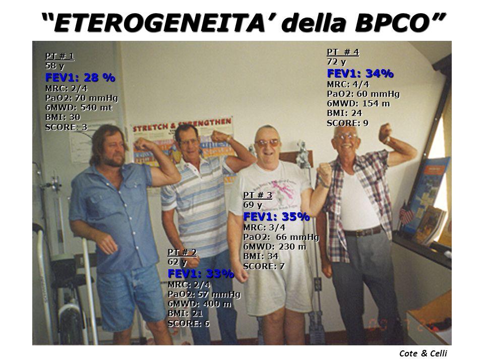 ETEROGENEITA' della BPCO PT # 1 58 y FEV1: 28 % MRC: 2/4 PaO2: 70 mmHg 6MWD: 540 mt BMI: 30 SCORE3 SCORE: 3 PT # 2 62 y FEV1: 33% MRC: 2/4 PaO2: 57 mmHg 6MWD: 400 m BMI: 21 SCORE: 6 PT # 3 69 y FEV1: 35% MRC: 3/4 PaO2: 66 mmHg 6MWD: 230 m BMI: 34 SCORE: 7 PT # 4 72 y FEV1: 34% MRC: 4/4 PaO2: 60 mmHg 6MWD: 154 m BMI: 24 SCORE: 9 Cote & Celli