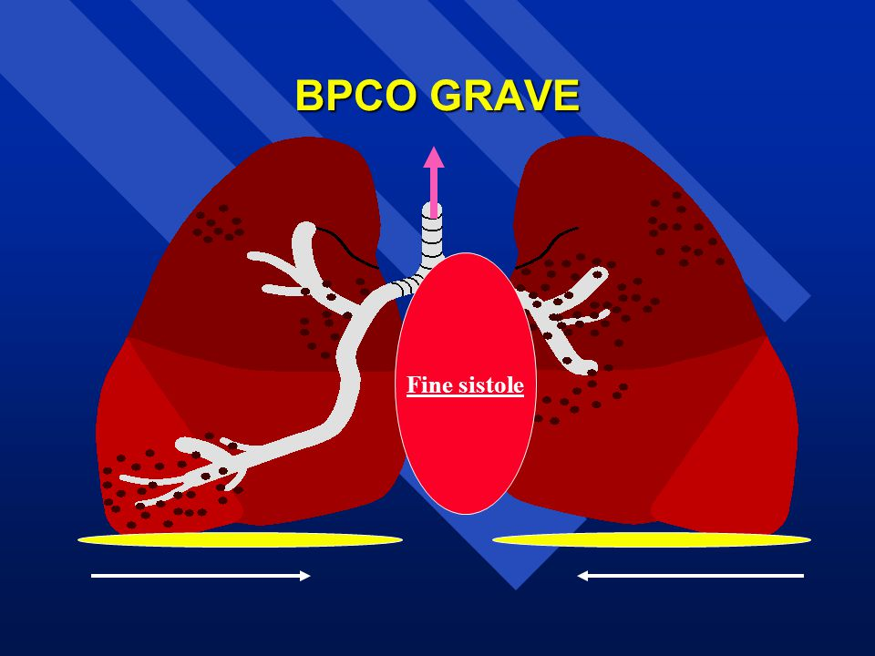 BPCO GRAVE Fine sistole