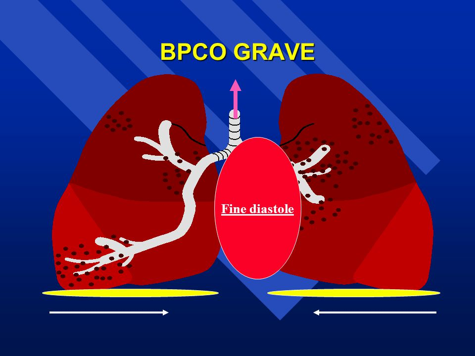 BPCO GRAVE Fine diastole