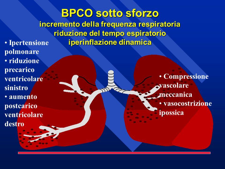 Compressione vascolare meccanica vasocostrizione ipossica Ipertensione polmonare riduzione precarico ventricolare sinistro aumento postcarico ventricolare destro