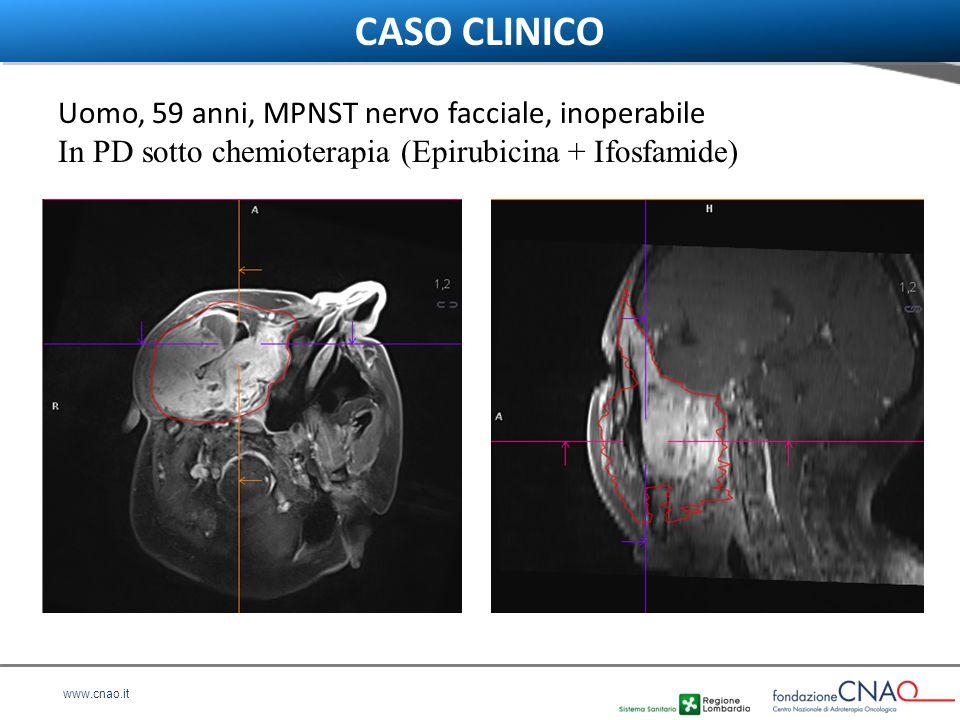 www.cnao.it Uomo, 59 anni, MPNST nervo facciale, inoperabile In PD sotto chemioterapia (Epirubicina + Ifosfamide) CASO CLINICO