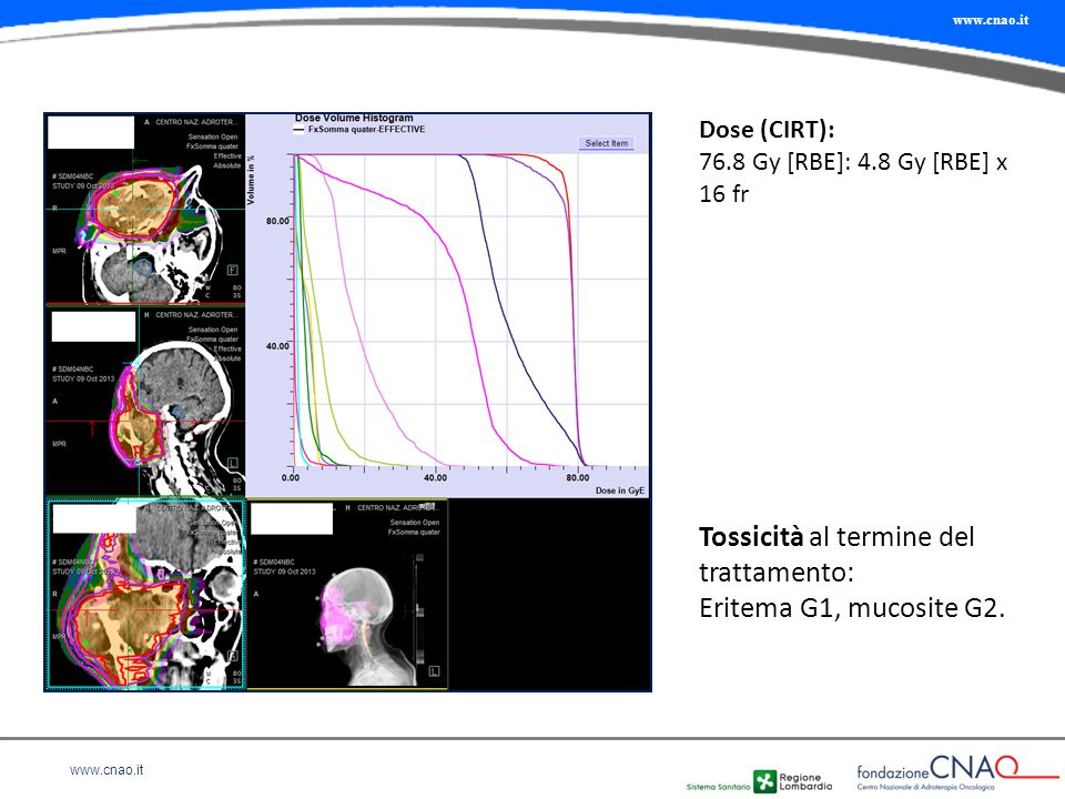 www.cnao.it Tossicità al termine del trattamento: Eritema G1, mucosite G2. Dose (CIRT): 76.8 Gy [RBE]: 4.8 Gy [RBE] x 16 fr