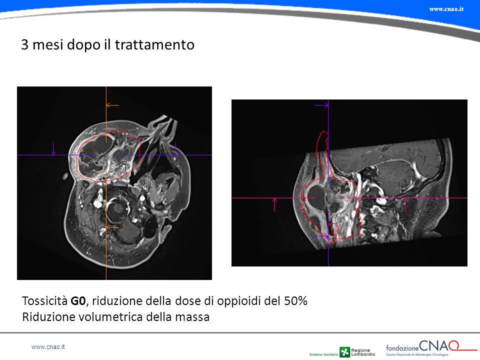www.cnao.it 3 mesi dopo il trattamento Tossicità G0, riduzione della dose di oppioidi del 50% Riduzione volumetrica della massa