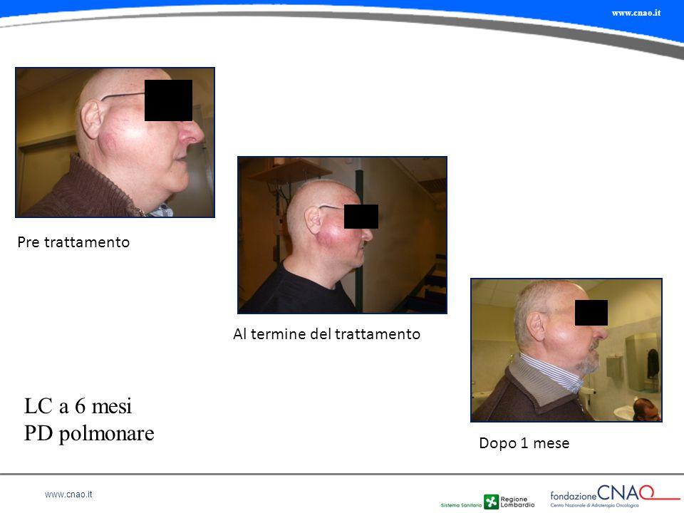 www.cnao.it Pre trattamento Al termine del trattamento Dopo 1 mese LC a 6 mesi PD polmonare