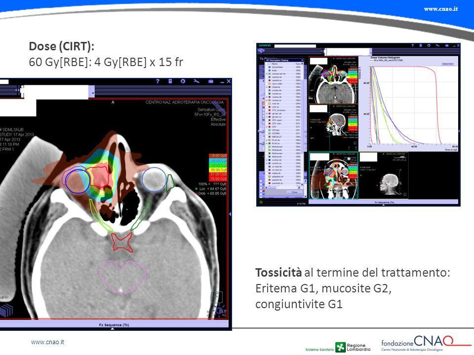 Dose (CIRT): 60 Gy[RBE]: 4 Gy[RBE] x 15 fr Tossicità al termine del trattamento: Eritema G1, mucosite G2, congiuntivite G1