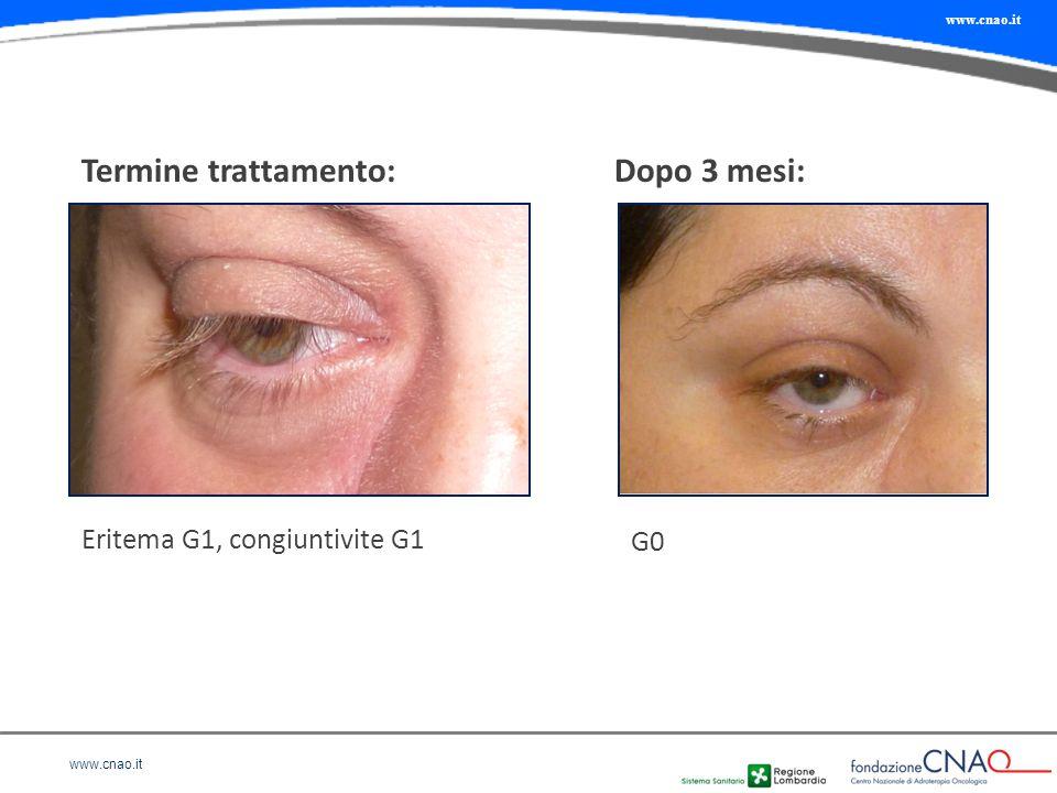 www.cnao.it Termine trattamento:Dopo 3 mesi: Eritema G1, congiuntivite G1 G0