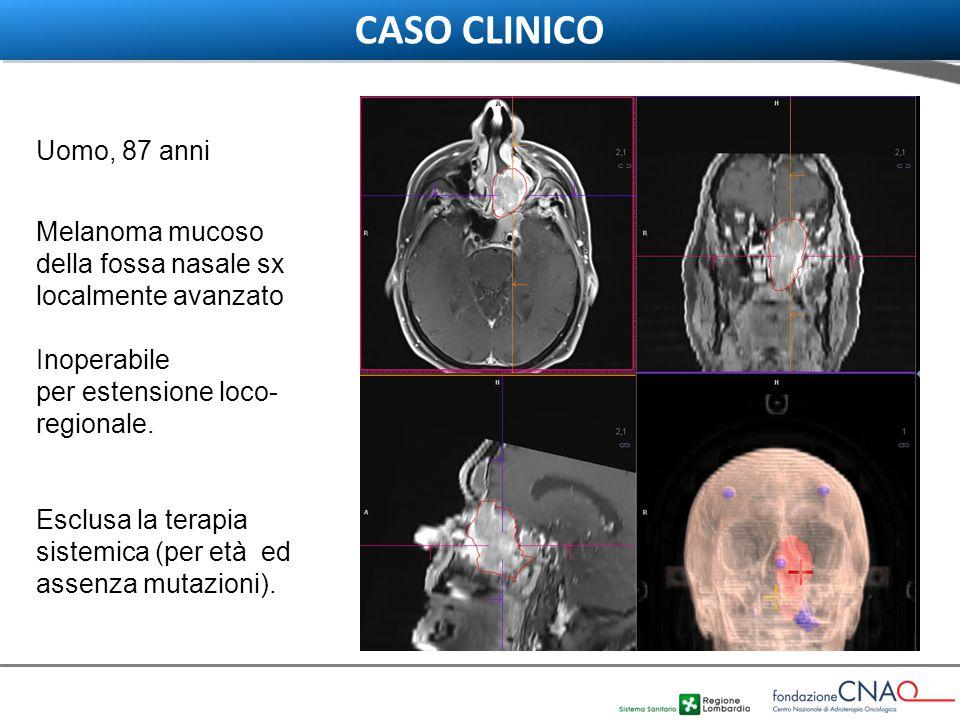 www.cnao.it Uomo, 87 anni Melanoma mucoso della fossa nasale sx localmente avanzato Inoperabile per estensione loco- regionale. Esclusa la terapia sis
