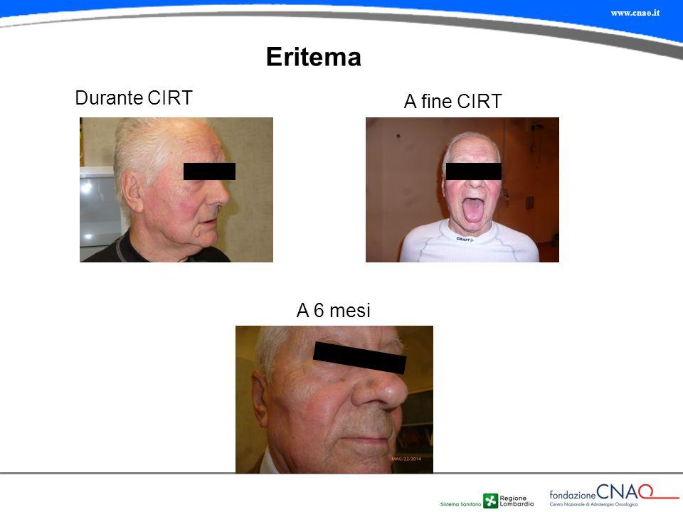 www.cnao.it Eritema Durante CIRT A fine CIRT A 6 mesi
