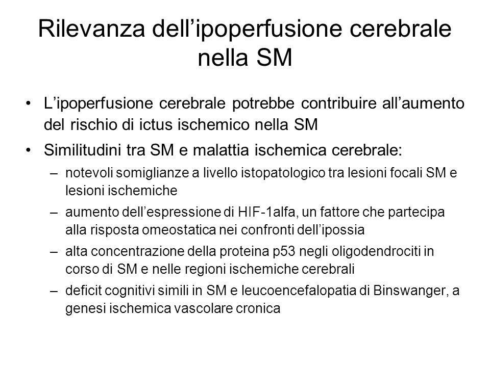 Rilevanza dell'ipoperfusione cerebrale nella SM L'ipoperfusione cerebrale potrebbe contribuire all'aumento del rischio di ictus ischemico nella SM Sim