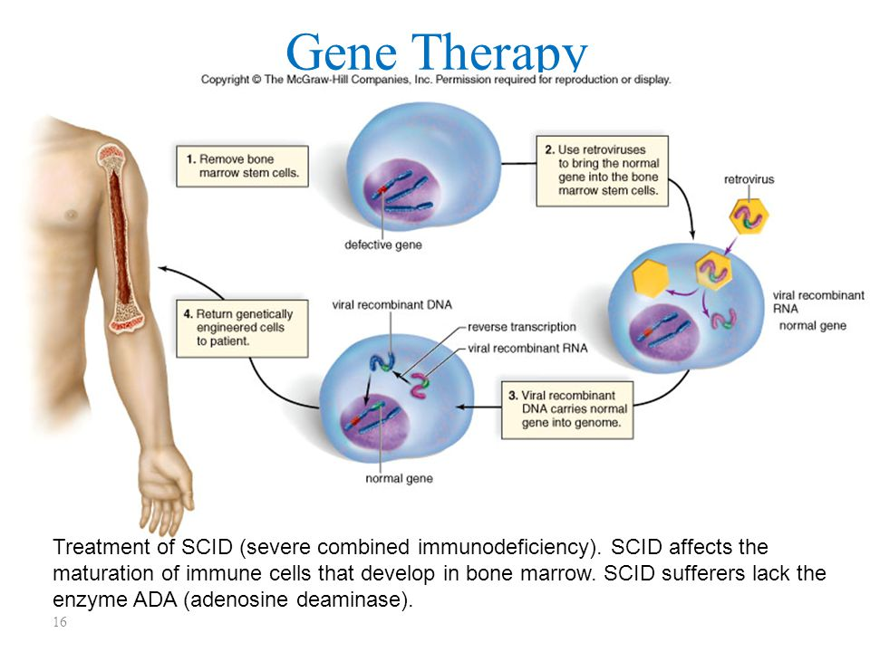 16 Gene Therapy Treatment of SCID (severe combined immunodeficiency).