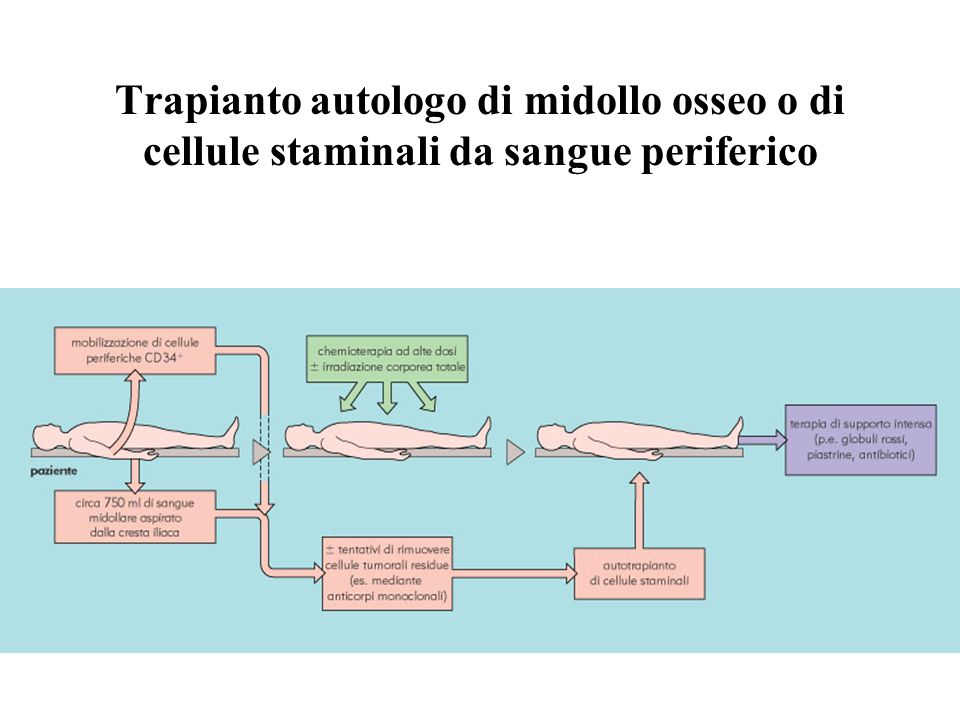 Trapianto autologo di midollo osseo o di cellule staminali da sangue periferico