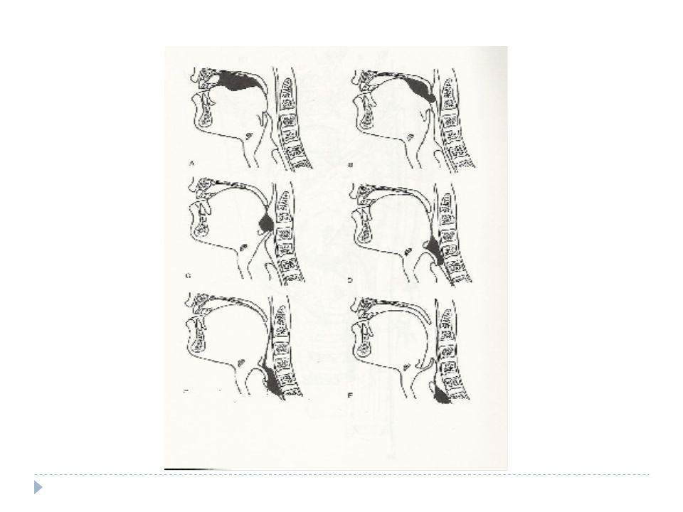 Accorgimenti posturali  Capo flesso in avanti: correzione dei difetti di innesco della fase faringea e della deglutizione con ridotta motilità linguale e aumento del tempo di transito faringeo (arretramento della parete faringea anteriore, riduzione dello spazio tra base lingua-epiglottide e parete faringea, laringe incassata sotto la lingua)  Capo esteso e/o inclinato all'indietro: compensa per effetto della forza di gravità una limitazione funzionale della fase propulsiva orale/linguale ed una peristalsi faringea inefficiente ATTENZIONE ALL' AB INGESTIS