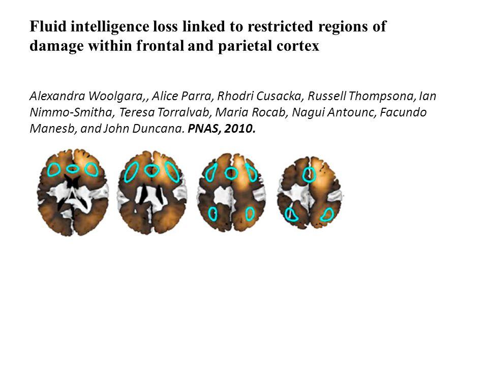 Fluid intelligence loss linked to restricted regions of damage within frontal and parietal cortex Alexandra Woolgara,, Alice Parra, Rhodri Cusacka, Ru