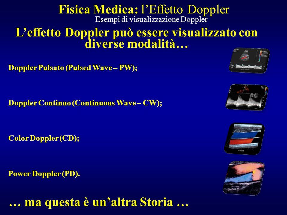 L'effetto Doppler può essere visualizzato con diverse modalità… Doppler Pulsato (Pulsed Wave – PW); Doppler Continuo (Continuous Wave – CW); Color Dop
