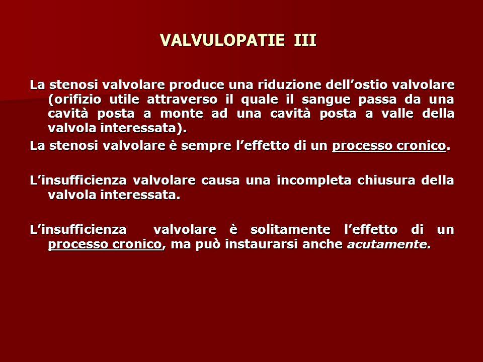 VALVULOPATIE III La stenosi valvolare produce una riduzione dell'ostio valvolare (orifizio utile attraverso il quale il sangue passa da una cavità posta a monte ad una cavità posta a valle della valvola interessata).