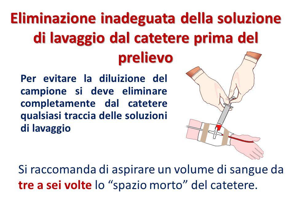 Eliminazione inadeguata della soluzione di lavaggio dal catetere prima del prelievo Per evitare la diluizione del campione si deve eliminare completam