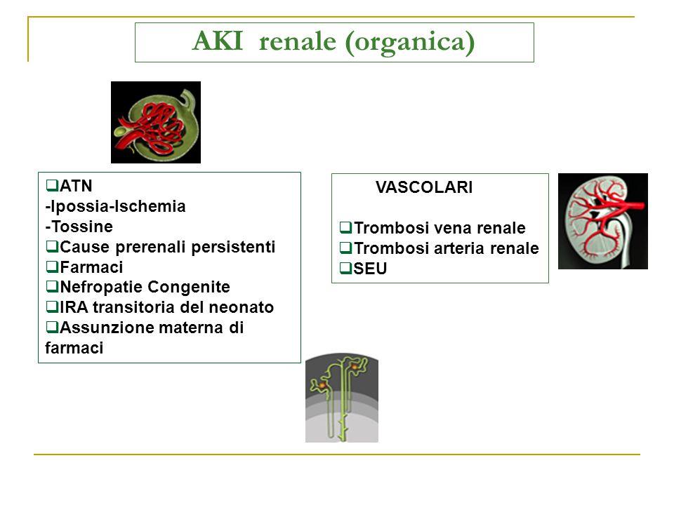 AKI renale (organica) VASCOLARI  Trombosi vena renale  Trombosi arteria renale  SEU  ATN -Ipossia-Ischemia -Tossine  Cause prerenali persistenti