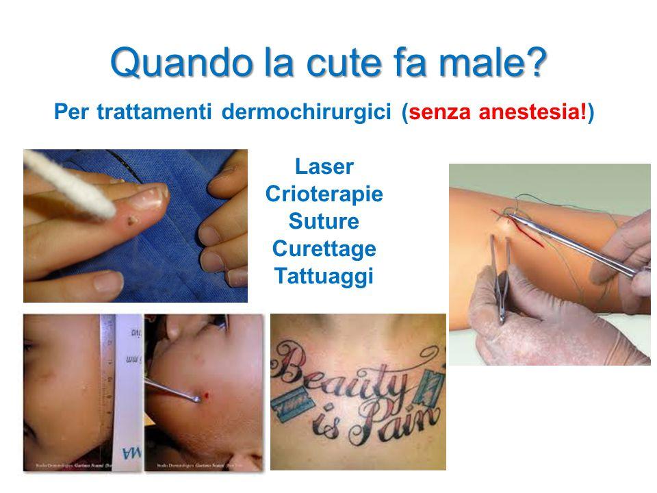 Quando la cute fa male? Per trattamenti dermochirurgici (senza anestesia!) Laser Crioterapie Suture Curettage Tattuaggi