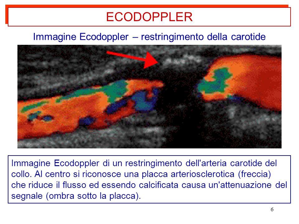 6 ECODOPPLER Immagine Ecodoppler di un restringimento dell'arteria carotide del collo. Al centro si riconosce una placca arteriosclerotica (freccia) c