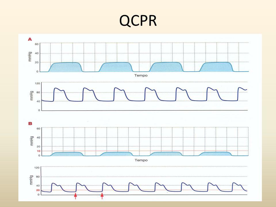 D defibrillation Defibrillare precocemente con shock il più possibile a ridosso delle compressioni