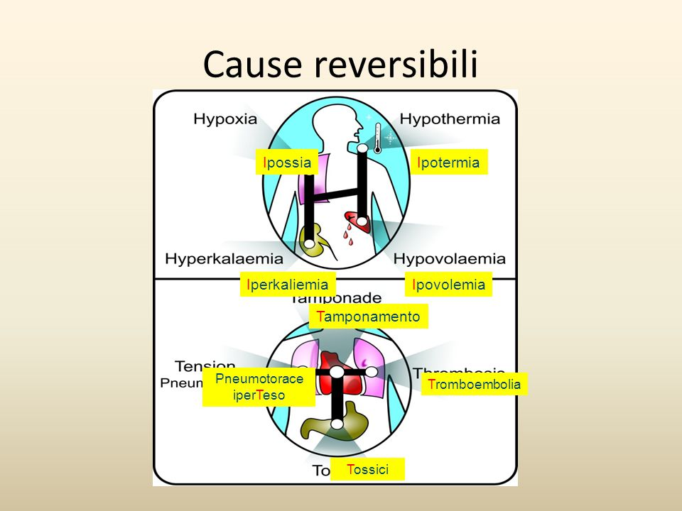 Cause reversibili IpossiaIpotermia IperkaliemiaIpovolemia Tamponamento Pneumotorace iperTeso Tromboembolia Tossici